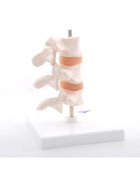 Osteoporoz Modeli, 3 Omur