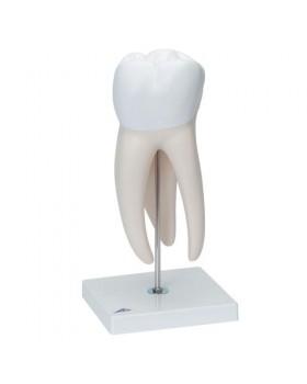 Diş Modeli, 6 Parçalı