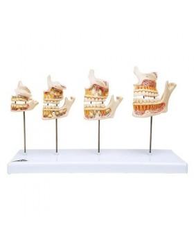 Diş Gelişim Modeli