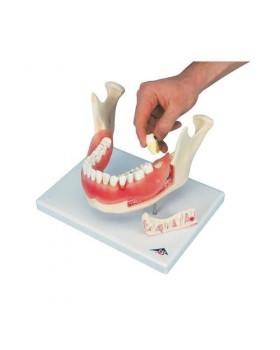 Diş Hastalıkları Modeli, 21 Parçalı, 2 Kat Büyütülmüş