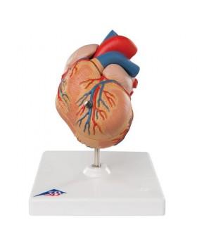 Sol Ventriküler Hipertrofi İle Klasik Kalp Modeli (LVH), 2 Parçalı