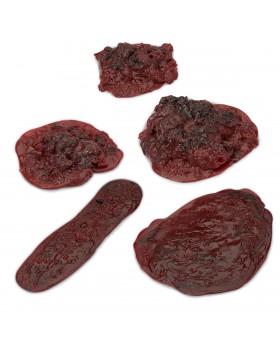 Kan Pıhtı Seti, 5 Set