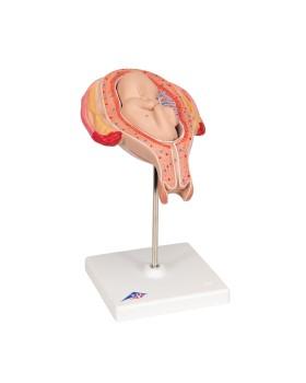 Fetus Modeli, 5. Ay - Ters Konum