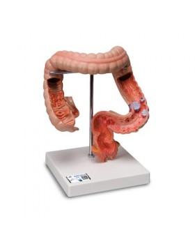 Bağırsak Hastalıkları Modeli