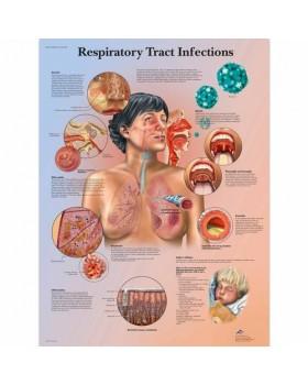 Solunum Yolu Enfeksiyonları Posteri