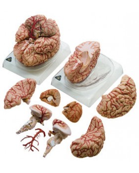 Arterli Beyin Modeli
